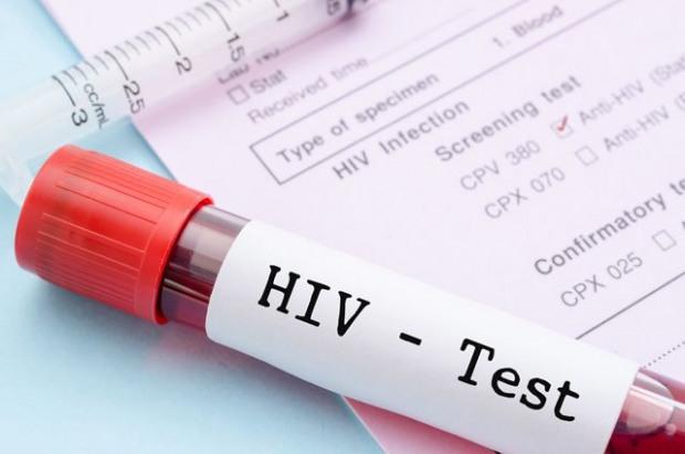 В Днепропетровске можно будет бесплатно и анонимно сделать тест на ВИЧ