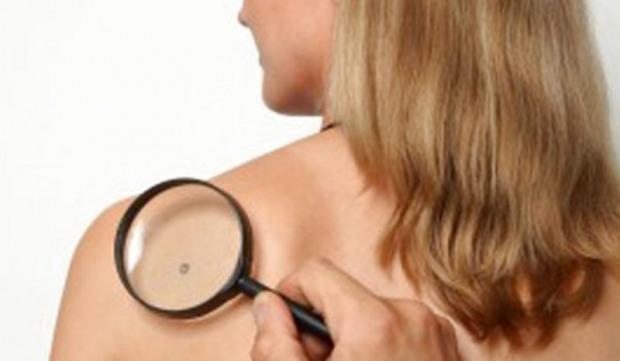 Днепровцам предлагают диагностику новообразований на коже