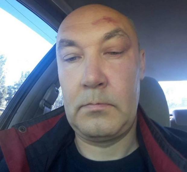 В Днепре избили редактора «ЗОВ» Всеволода Новохатько