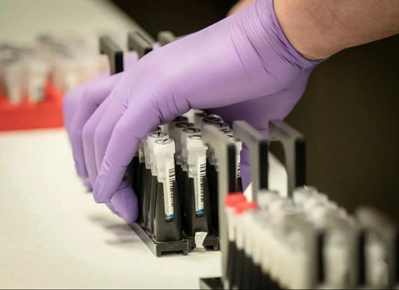 Точність результату експрес-тестів на коронавірус – 60-70%