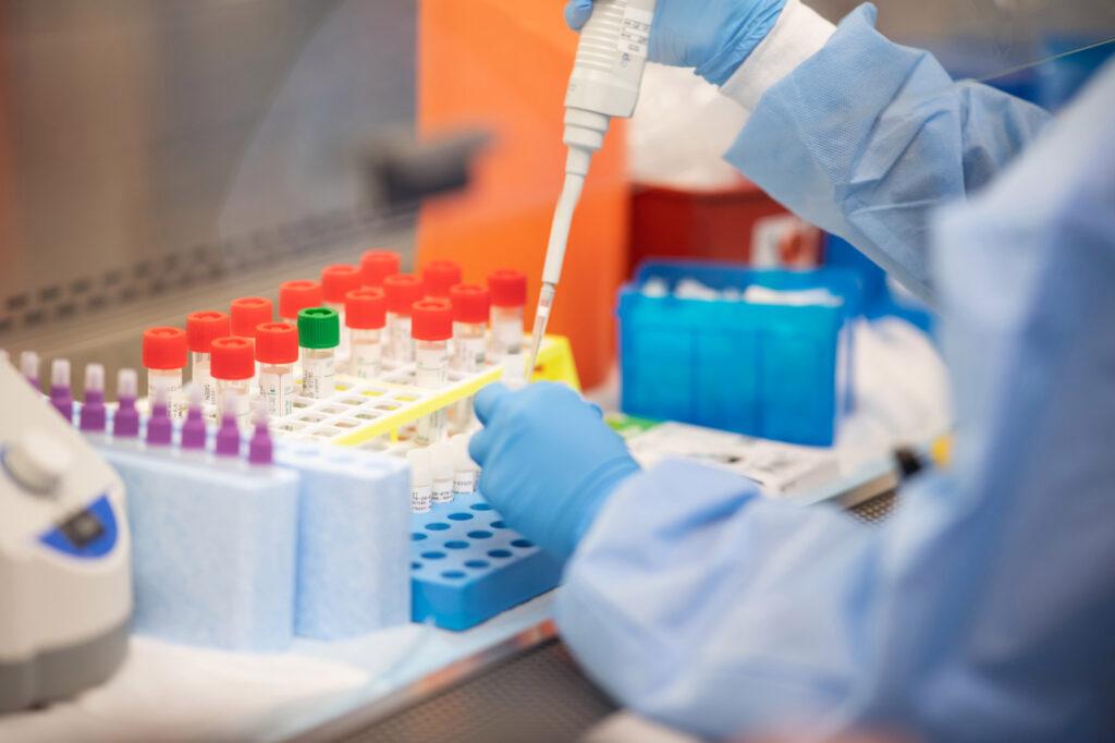 COVID-19 на Дніпропетровщині: виявлено 267 нових хворих