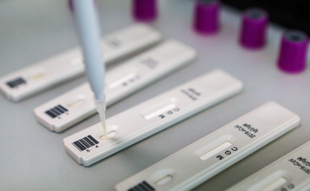 COVID-19 на Дніпропетровщині: захворіло 80 людей