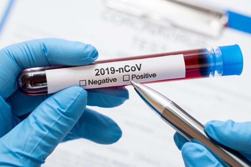 У Дніпрі за добу виявлено 565 нових випадків захворювання на коронавірусну інфекцію