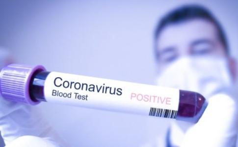 Як безкоштовно здати тест на COVID-19 в Дніпрі, та безкарно заражати оточуючих