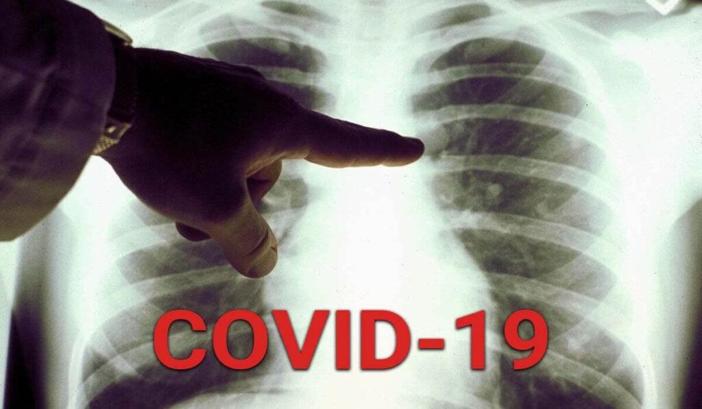 Нові випадки коронавірусної хвороби на Дніпропетровщині